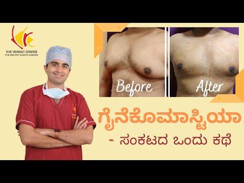 Before & After Gynecomastia Surgery Process Customer Testimonial - ಗೈನೆಕೊಮಾಸ್ಟಿಯಾ - ಸಂಕಟದ ಒಂದು ಕಥೆ