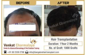 Before-After-Hair Transplant Results at Venkat Center