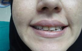 gummy smile after treatment