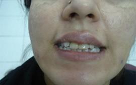 gummy smile before treatment