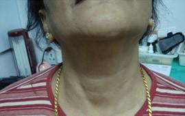 nefrititi life after treatment