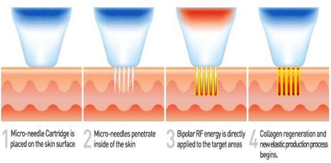MNRF procedure
