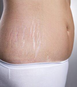 Pregnancy and Skin stretchmarks