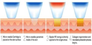 micro needling radio frequency process
