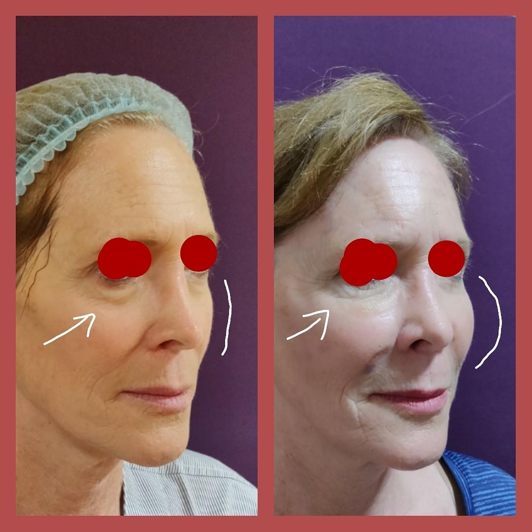 Undereye-and-Cheek-Augmentation