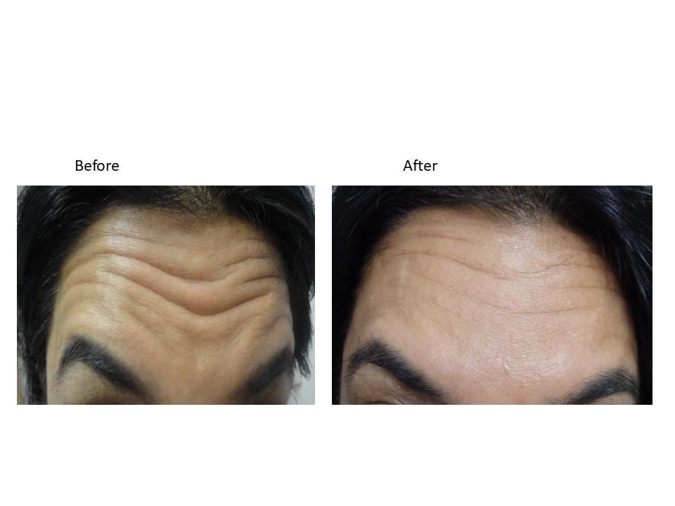 Botox Patients at The Venkat Center