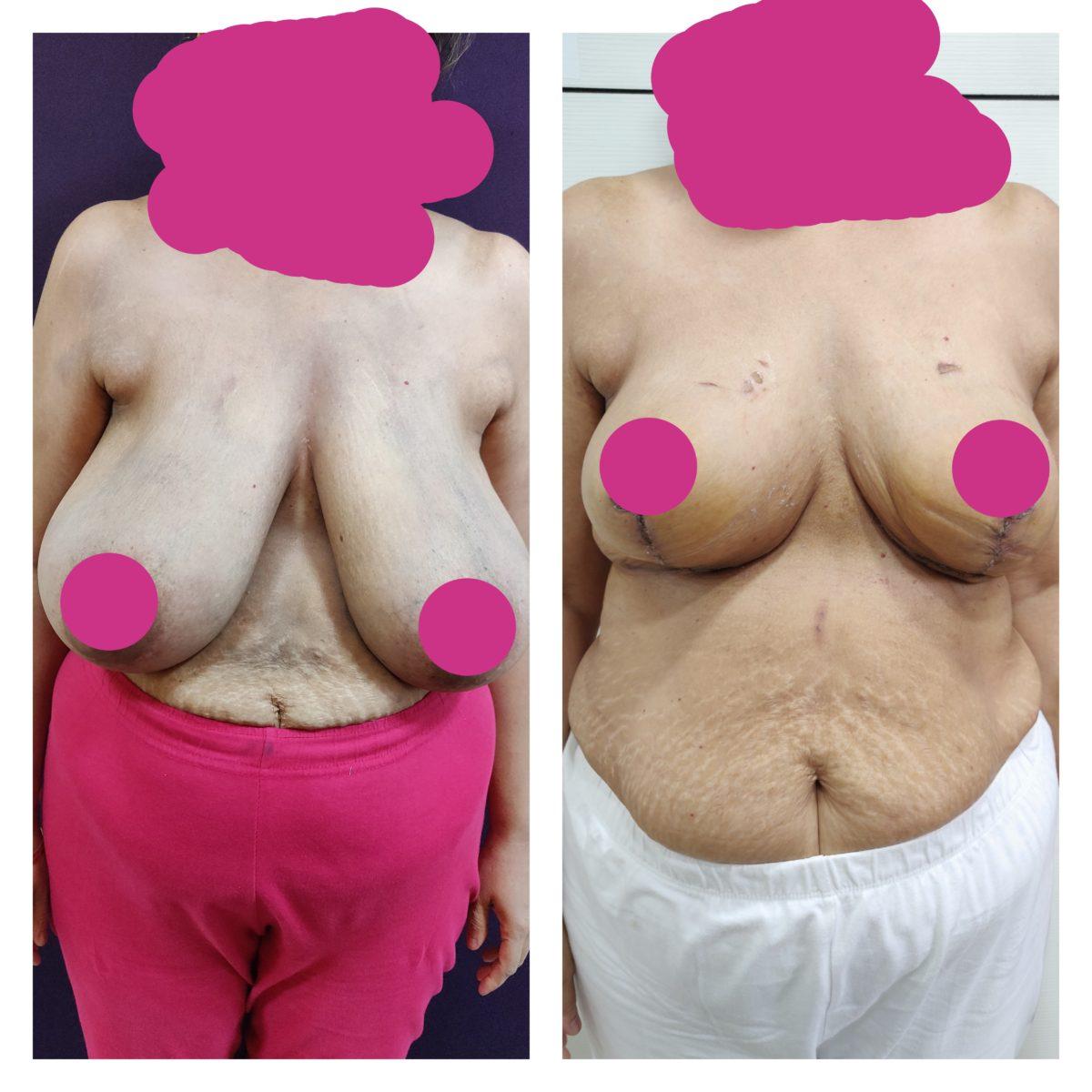 breast augmentation at The Venkat Center