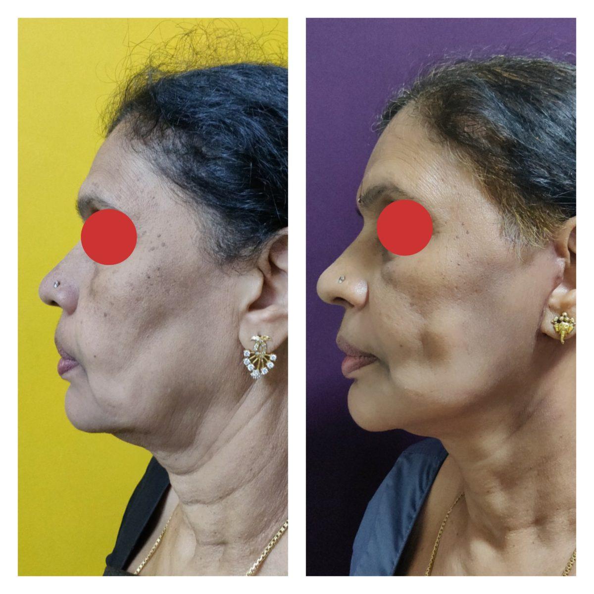 facial rejuvenation treatment at The Venkat Center