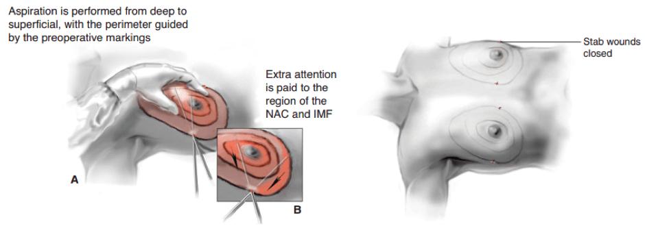Gynecomastia treatment pictorial representation