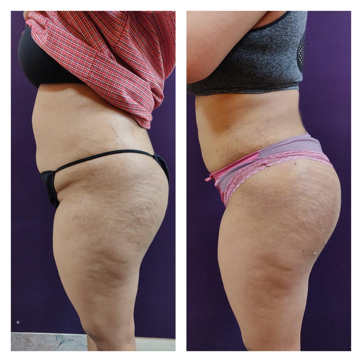 liposuction patients at The Venkat Center