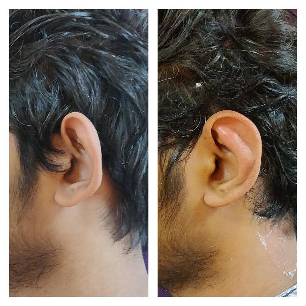 prominent-ear-correction-1