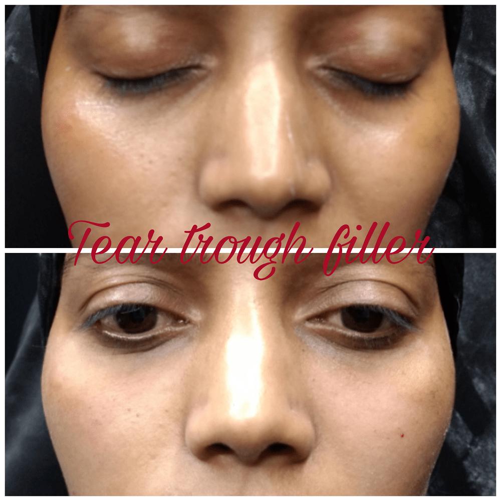 filler treatment at The Venkat Center