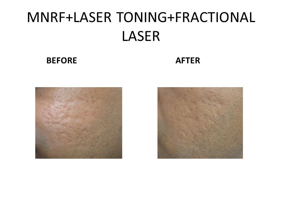 Laser Scar Removal at The Venkat Center