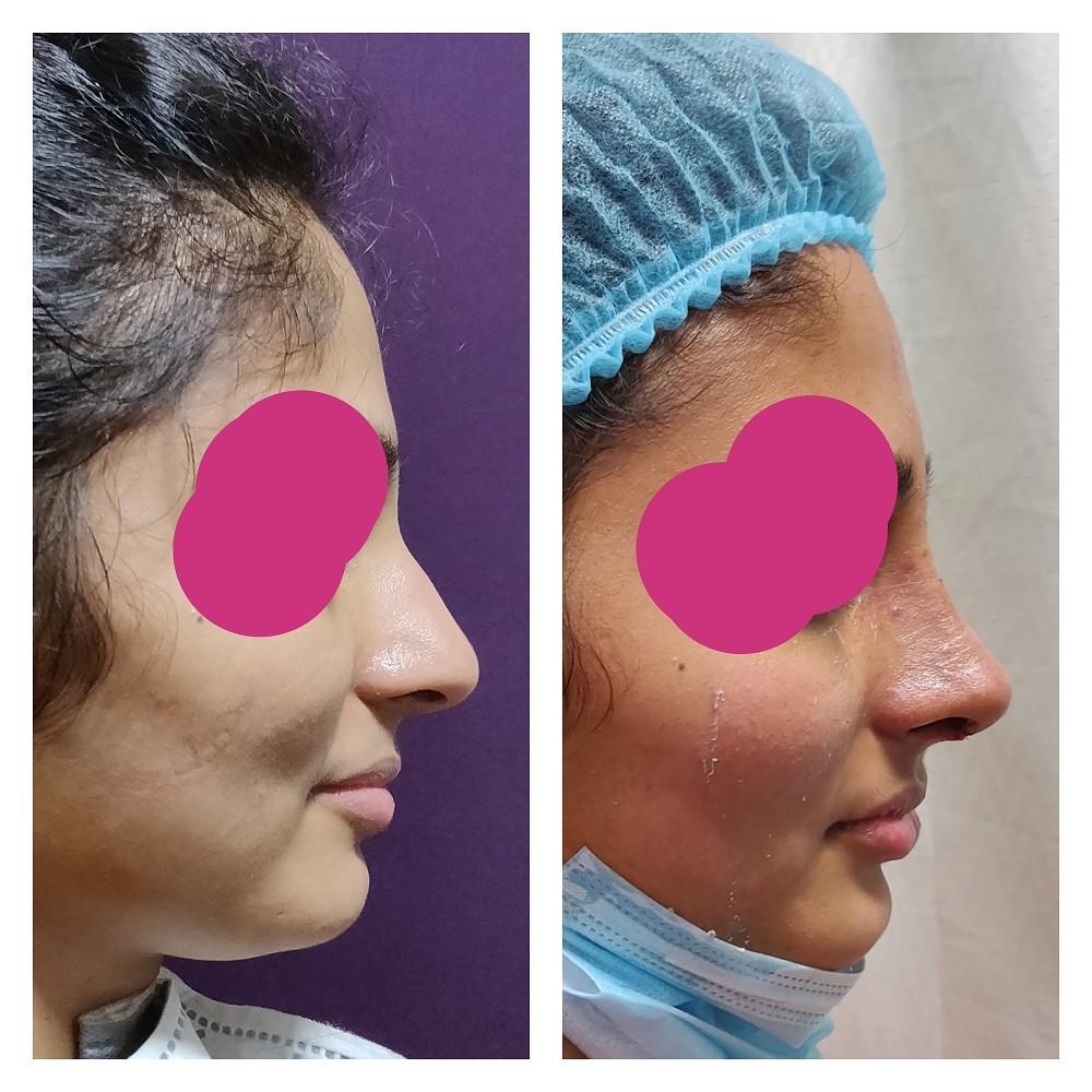 rhinoplasty patient at The Venkat Center