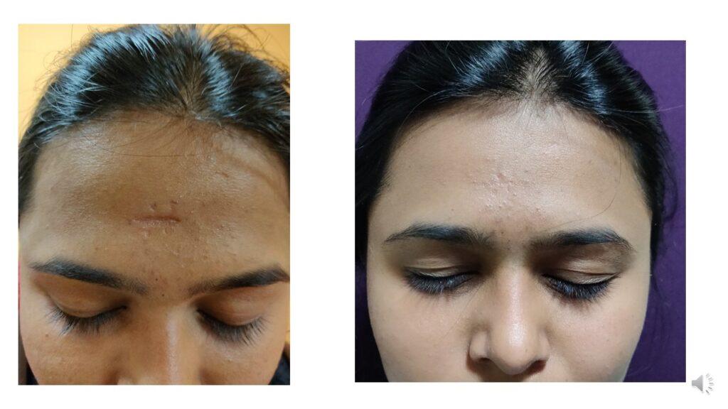 Scar Revision at the Venkat Center