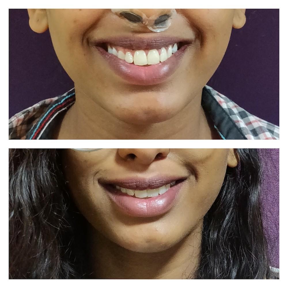 Botox - Gummy smile at venkat center