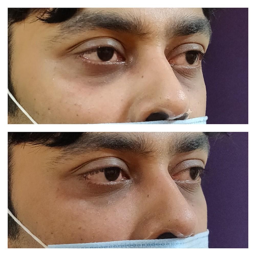 under eye filler at venkat center