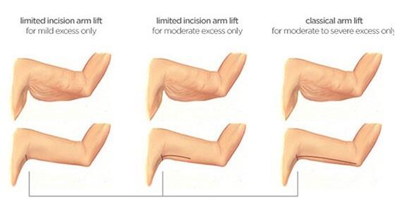 Brachioplasty surgery