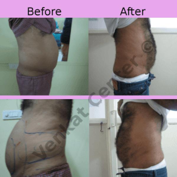 Liposuction Treatment at The Venkat Center