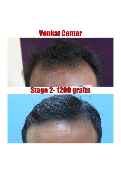 1200 FUE hair transplant venkat center bangalore