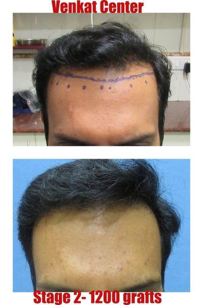 1200 hair transplant venkat center bangalore