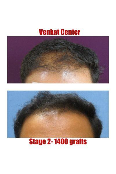1400 FUE hair transplant venkat center bangalore