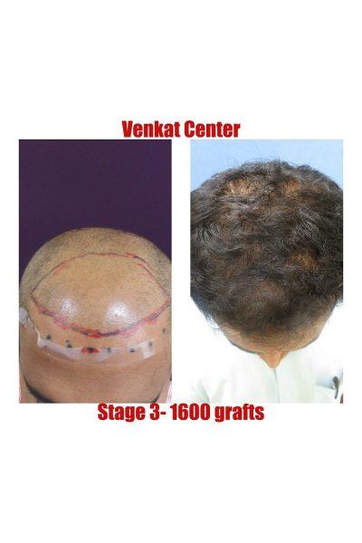 1600 FUE hair transplant venkat center bangalore