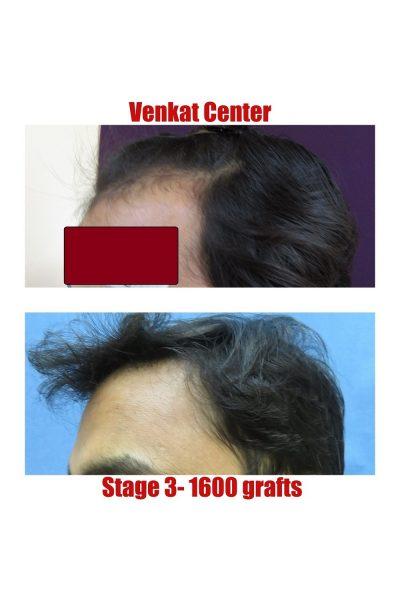 1600 hair transplant result venkat center bangalore