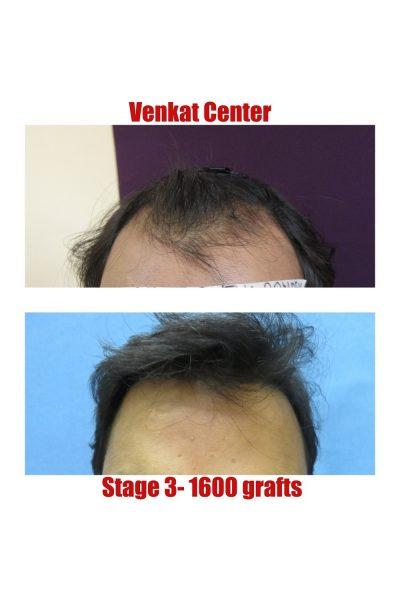 1600 hair transplant venkat center bangalore