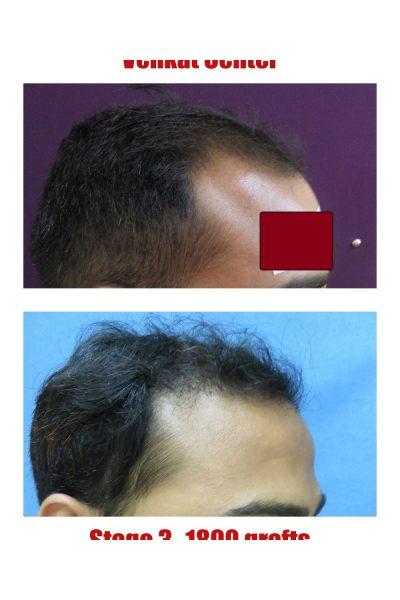 1800 FUE hair transplant venkat center bangalore