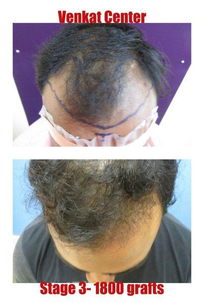 1800 hair transplant venkat center bangalore