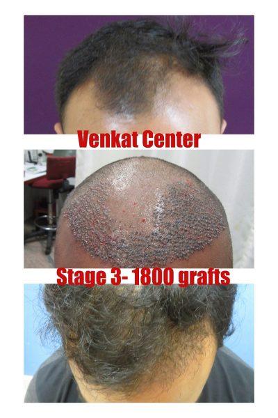 1800 result hair transplant venkat center bangalore