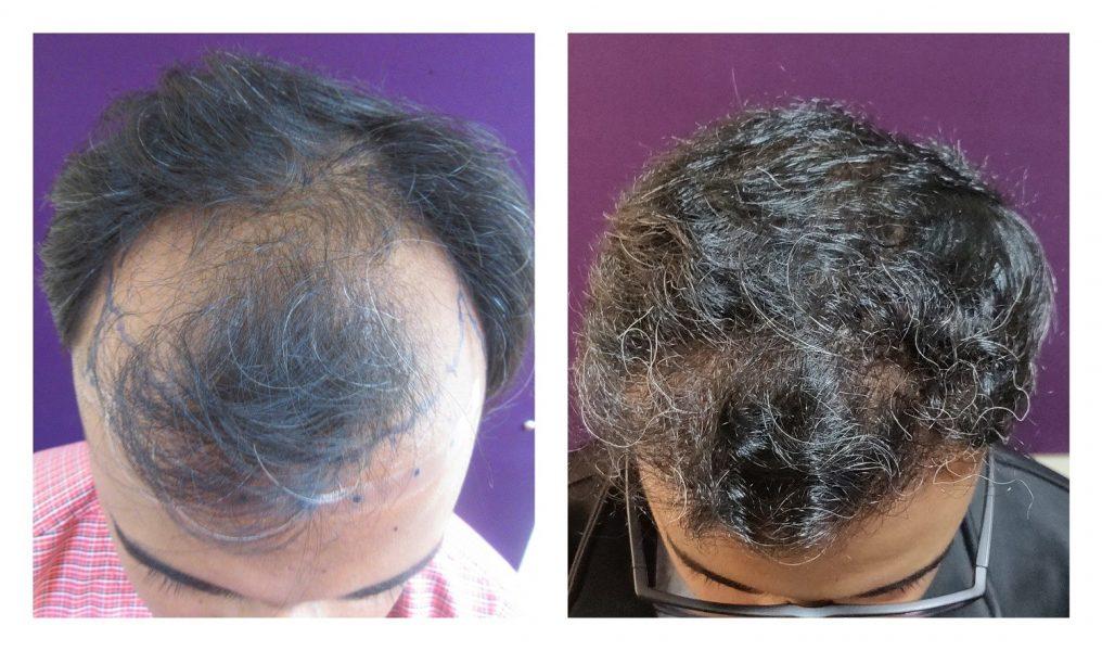 2000 hair transplant result