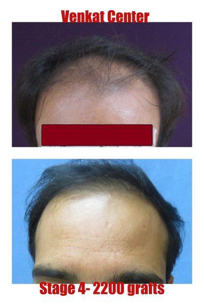 2200 FUE hair transplant result venkat center bangalore