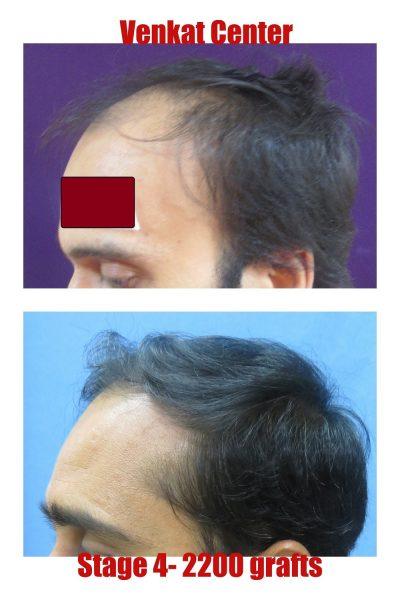 2200 FUE hair transplant venkat center bangalore