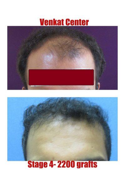 2400 FUE hair transplant venkat center bangalore