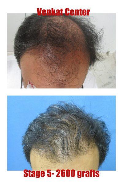 2400 grafts hair transplant venkat center bangalore