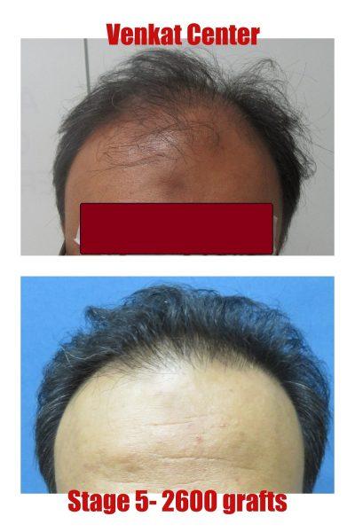 2600 grafts hair transplant results venkat center bangalore