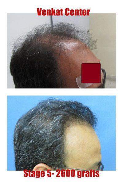 2600 grafts hair transplantation venkat center bangalore