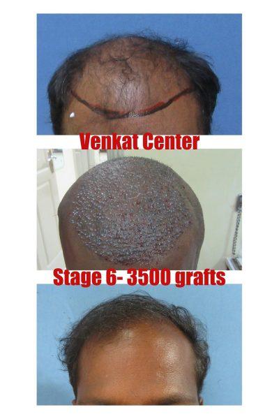3600 grafts hair transplant results venkat center bangalore