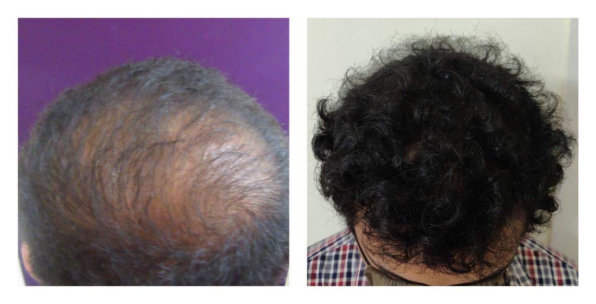 VC hair transplant
