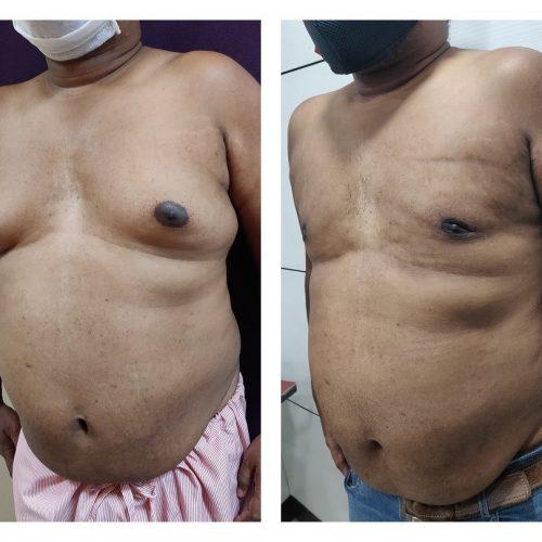 gynecomastia patient at the Venkat Center