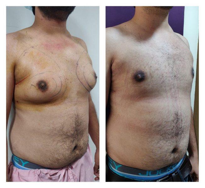 Gynaecomastia Treatment at Venkat Center
