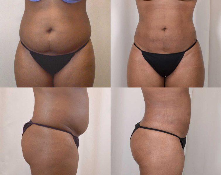 Liposuction in women at The Venkat Center