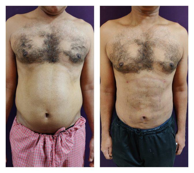 Liposuction in the abdomen