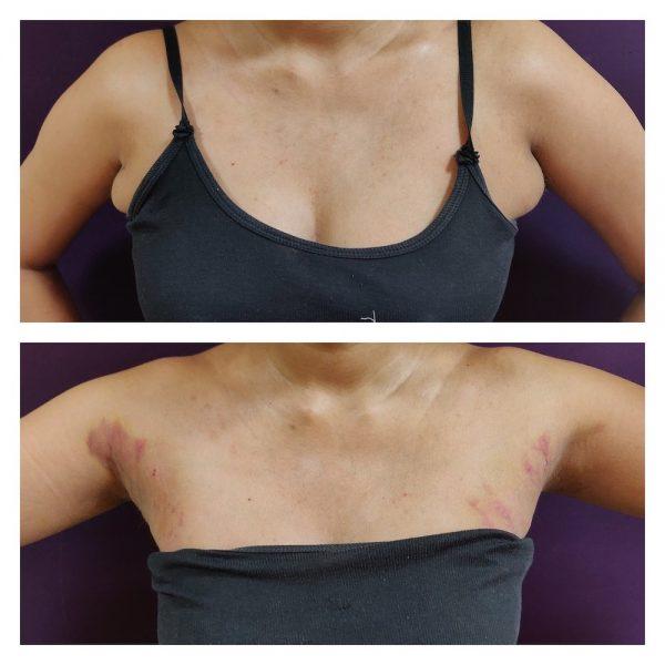 Liposuction (Axillary breast) in venkat center