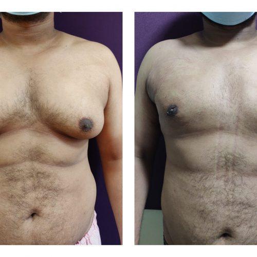 gynecomastia-treatment