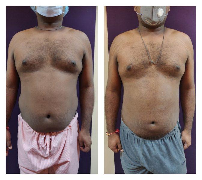 liposuction at venkat center